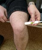 Лечение артритов и артрозов коленного сустава аппаратом