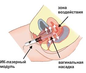 Вагинальная методика лечения кольпита, аднексита.
