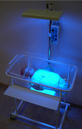 Лечение желтухи новорожденного