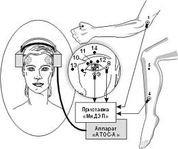 """Применении совместно с излучателем """"ОГОЛОВЬЕ"""" приставки """"МнДЭП"""" для многоканальной электростимуляции биологически активных точек (БАТ), ответственных за зрение."""