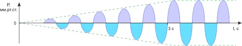 График нарастания амплитуды бароимпульсов аппарата АПМУ-